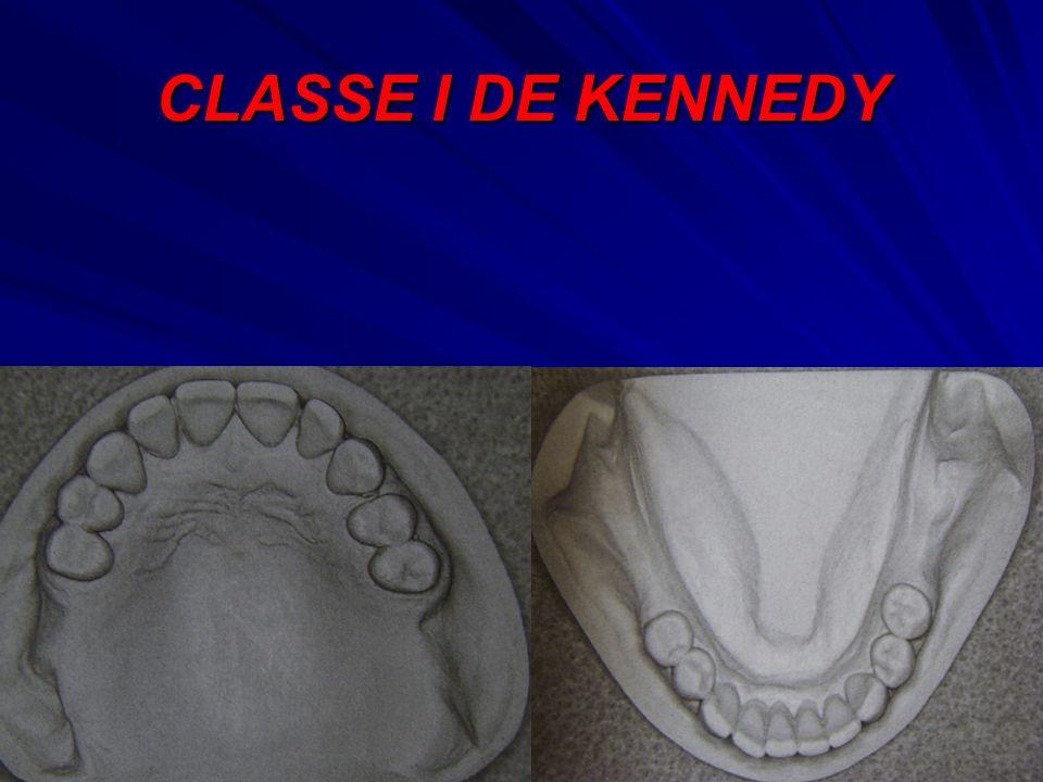 CLASSE I DE KENNEDY
