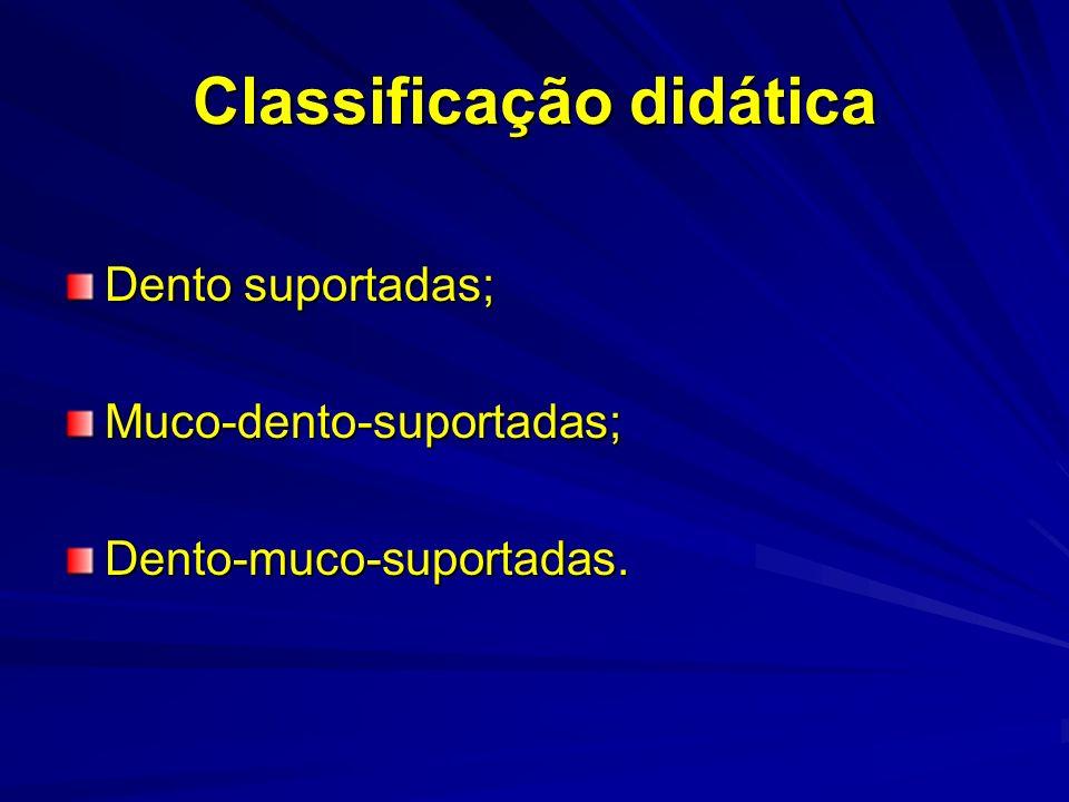 Classificação didática Dento suportadas; Muco-dento-suportadas;Dento-muco-suportadas.