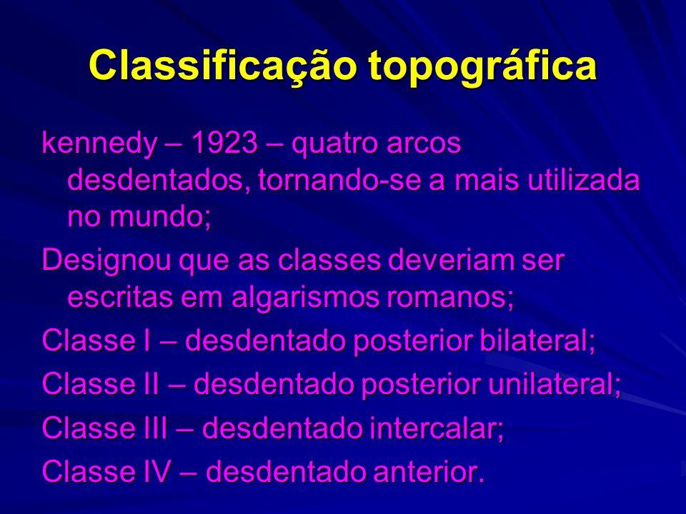 Classificação topográfica kennedy – 1923 – quatro arcos desdentados, tornando-se a mais utilizada no mundo; Designou que as classes deveriam ser escri