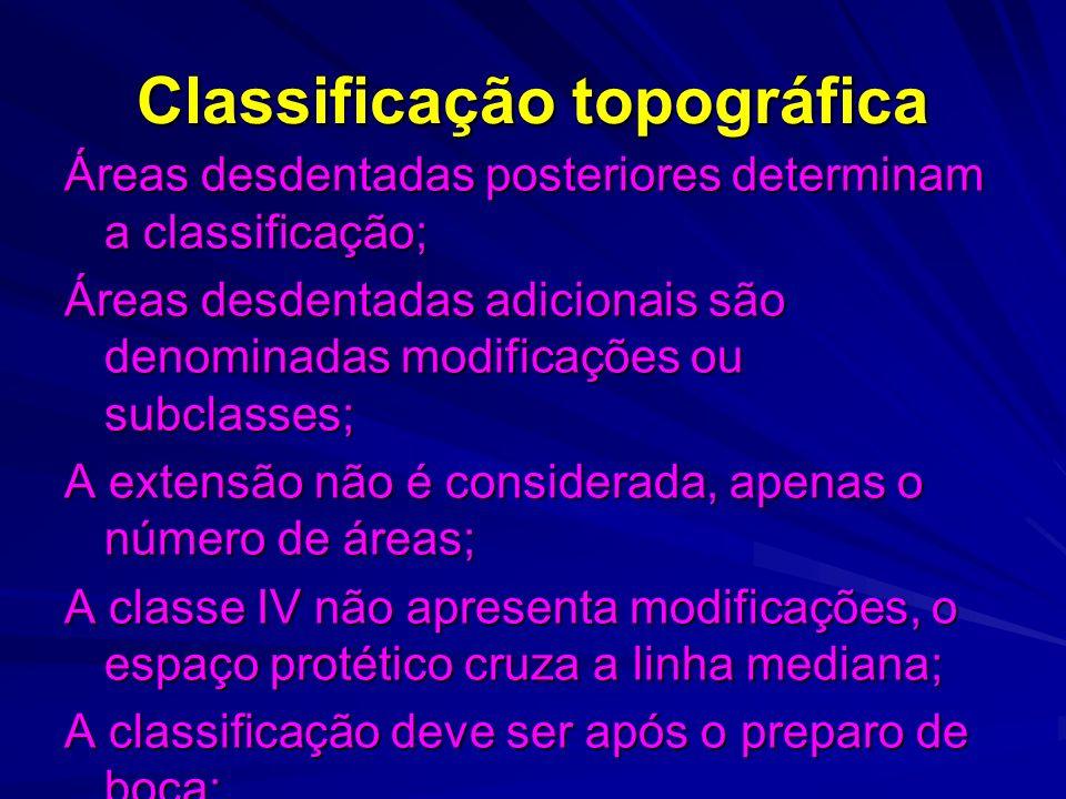 Classificação topográfica Áreas desdentadas posteriores determinam a classificação; Áreas desdentadas adicionais são denominadas modificações ou subcl