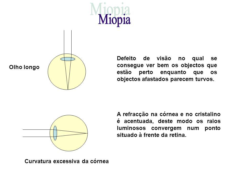 Olho longo Curvatura excessiva da córnea Defeito de visão no qual se consegue ver bem os objectos que estão perto enquanto que os objectos afastados parecem turvos.