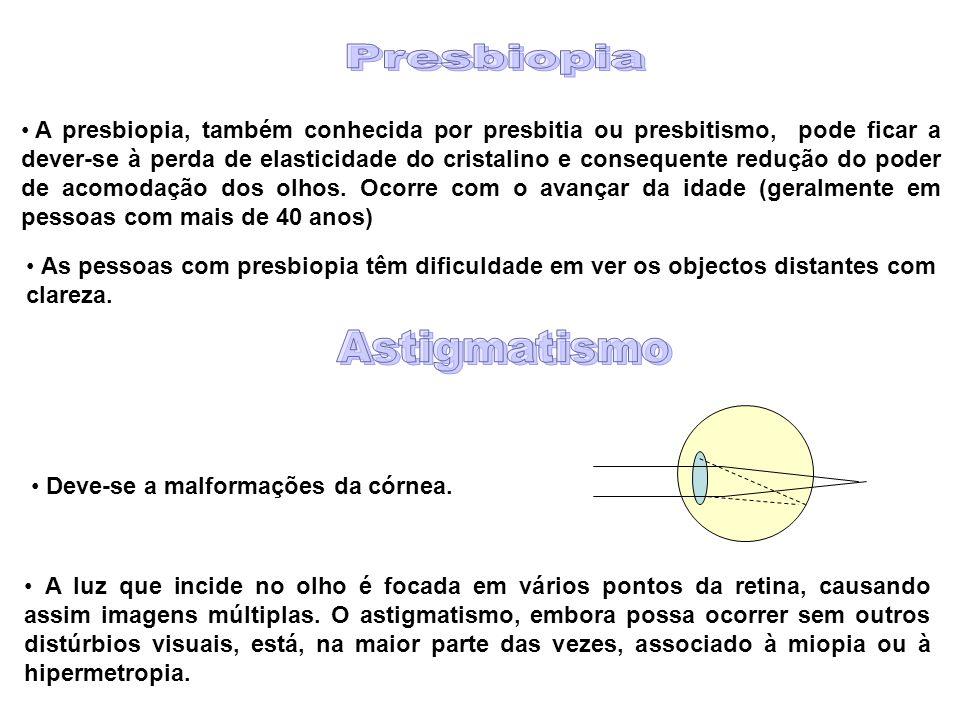 A presbiopia, também conhecida por presbitia ou presbitismo, pode ficar a dever-se à perda de elasticidade do cristalino e consequente redução do poder de acomodação dos olhos.