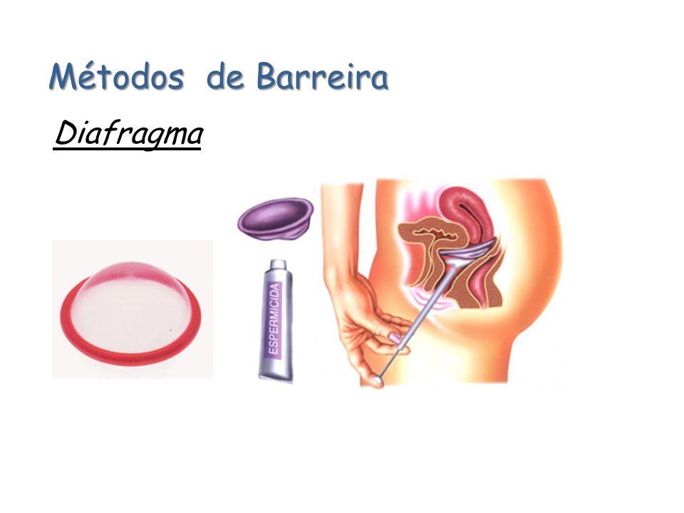 Métodos de Barreira DIU (Dispositivo Intra Uterino)