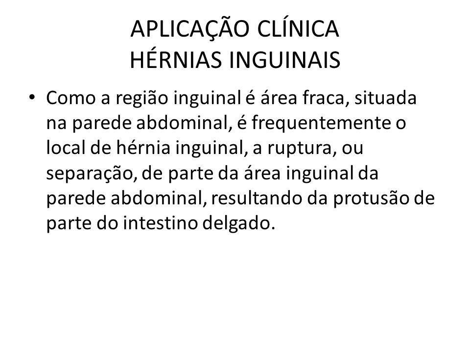 APLICAÇÃO CLÍNICA HÉRNIAS INGUINAIS Como a região inguinal é área fraca, situada na parede abdominal, é frequentemente o local de hérnia inguinal, a r