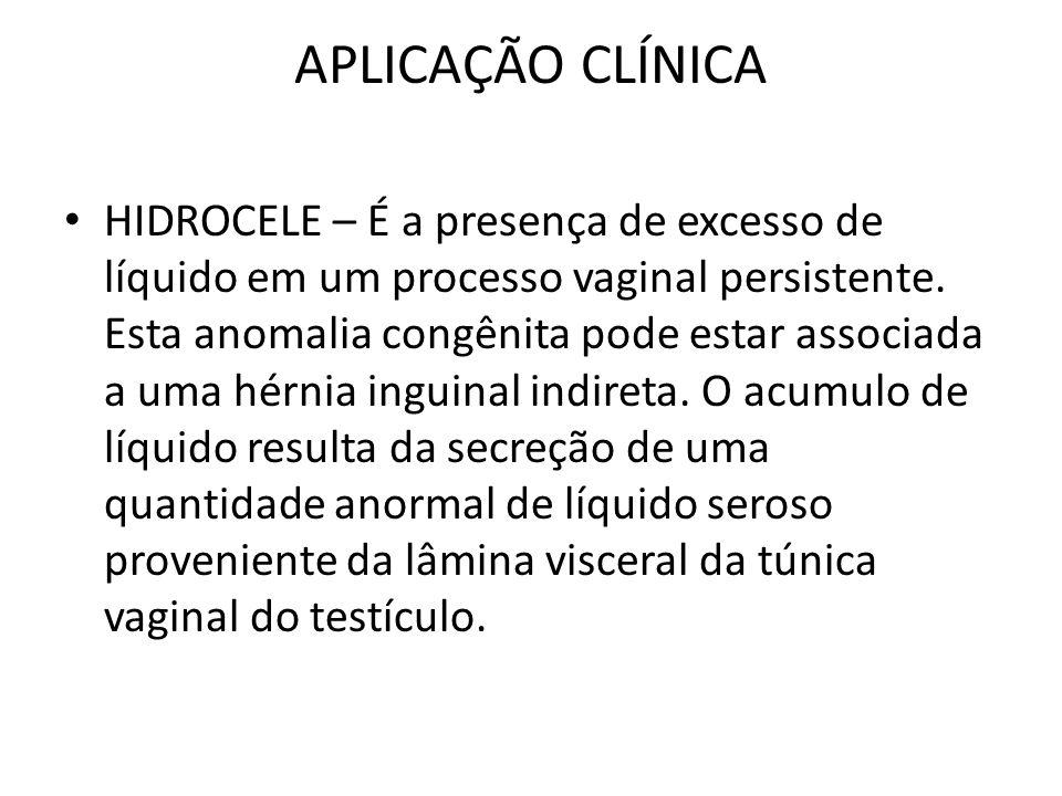APLICAÇÃO CLÍNICA HIDROCELE – É a presença de excesso de líquido em um processo vaginal persistente. Esta anomalia congênita pode estar associada a um