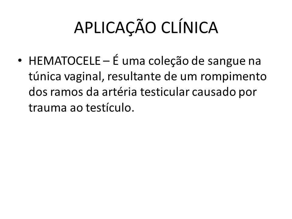 APLICAÇÃO CLÍNICA HEMATOCELE – É uma coleção de sangue na túnica vaginal, resultante de um rompimento dos ramos da artéria testicular causado por trau