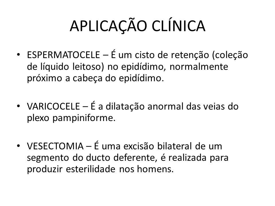 APLICAÇÃO CLÍNICA ESPERMATOCELE – É um cisto de retenção (coleção de líquido leitoso) no epidídimo, normalmente próximo a cabeça do epidídimo. VARICOC