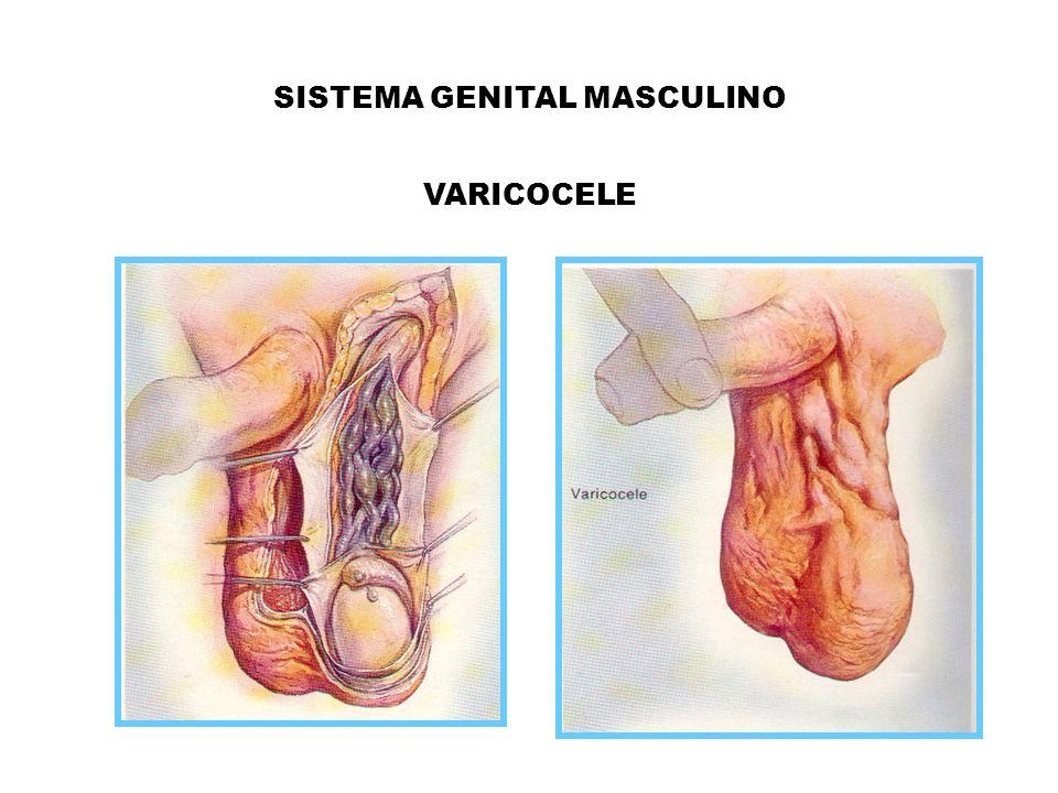 SISTEMA GENITAL MASCULINO VARICOCELE