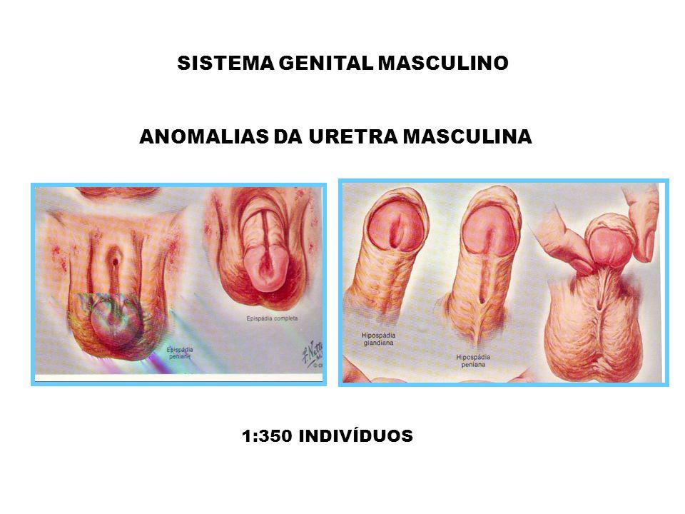 SISTEMA GENITAL MASCULINO ANOMALIAS DA URETRA MASCULINA 1:350 INDIVÍDUOS