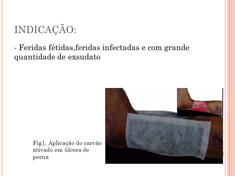 INDICAÇÃO: - Feridas fétidas,feridas infectadas e com grande quantidade de exsudato Fig1. Aplicação do carvão ativado em úlcera de perna