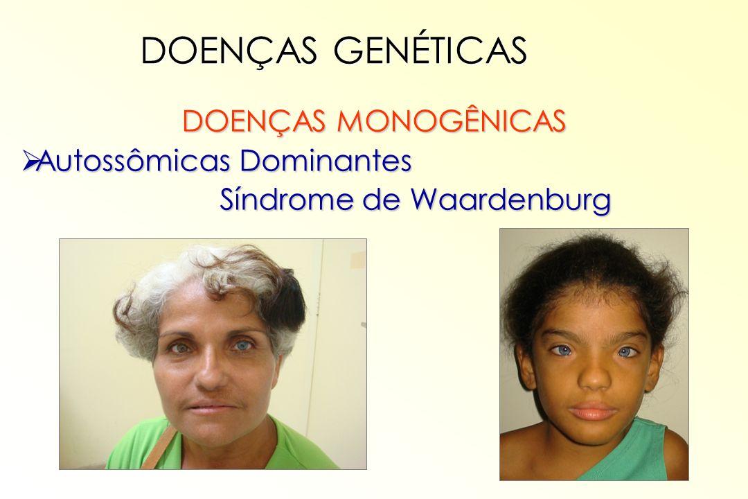 DOENÇAS MONOGÊNICAS Autossômicas Dominantes Autossômicas Dominantes Síndrome de Waardenburg DOENÇAS GENÉTICAS