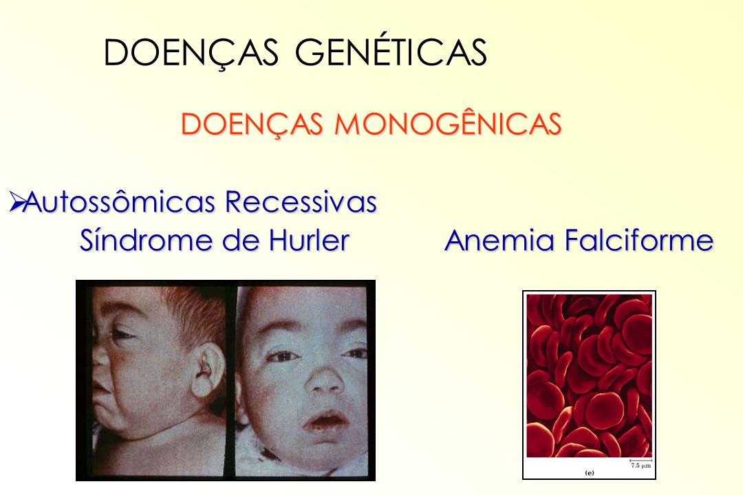 DOENÇAS MONOGÊNICAS Autossômicas Recessivas Autossômicas Recessivas Síndrome de Hurler Anemia Falciforme Síndrome de Hurler Anemia Falciforme DOENÇAS