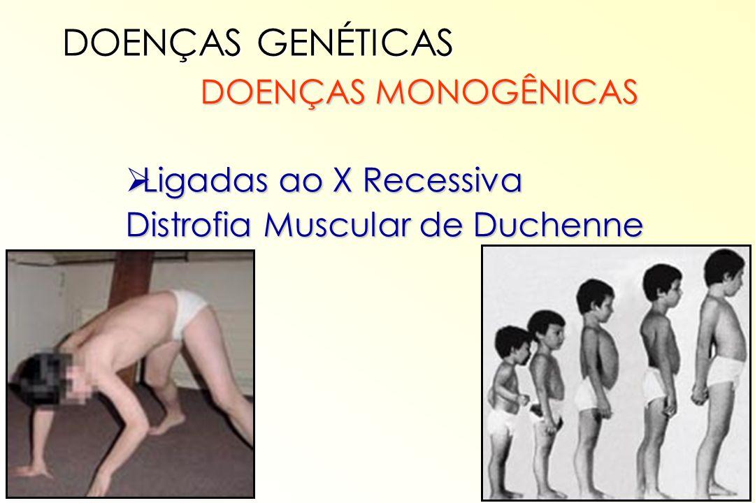 DOENÇAS MONOGÊNICAS DOENÇAS MONOGÊNICAS Ligadas ao X Recessiva Ligadas ao X Recessiva Distrofia Muscular de Duchenne DOENÇAS GENÉTICAS