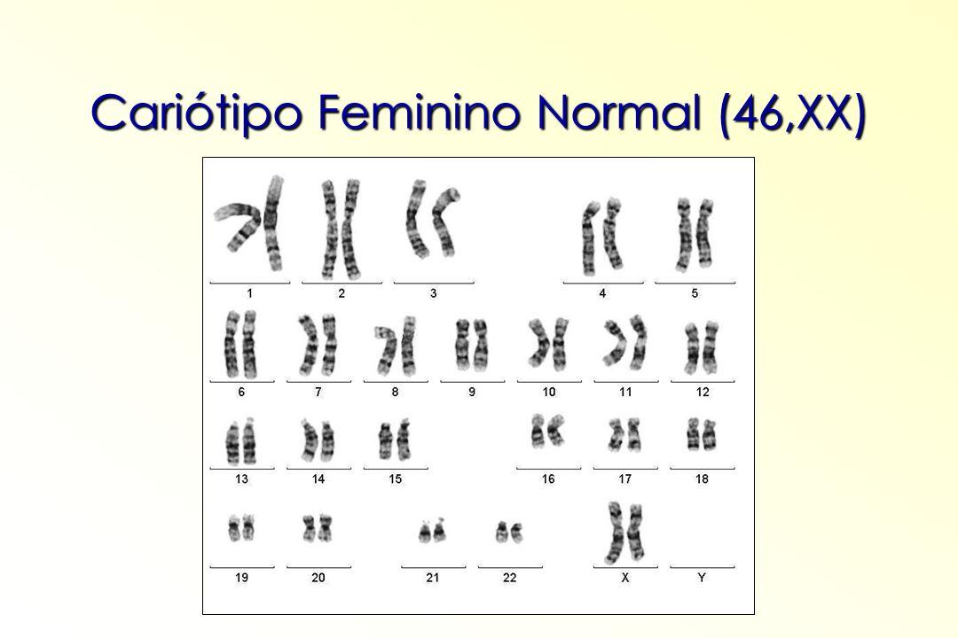 ALTERAÇÕES CROMOSSÔMICAS Numéricas Numéricas Número total de cromossomos diferente de 46.