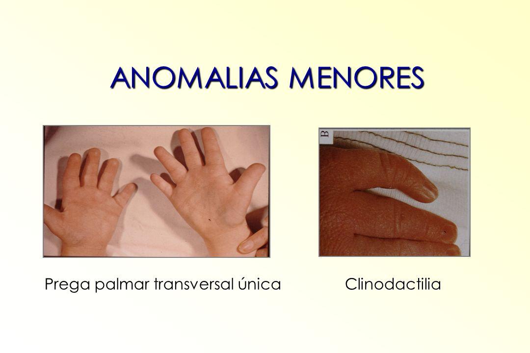 Prega palmar transversal única Clinodactilia ANOMALIAS MENORES