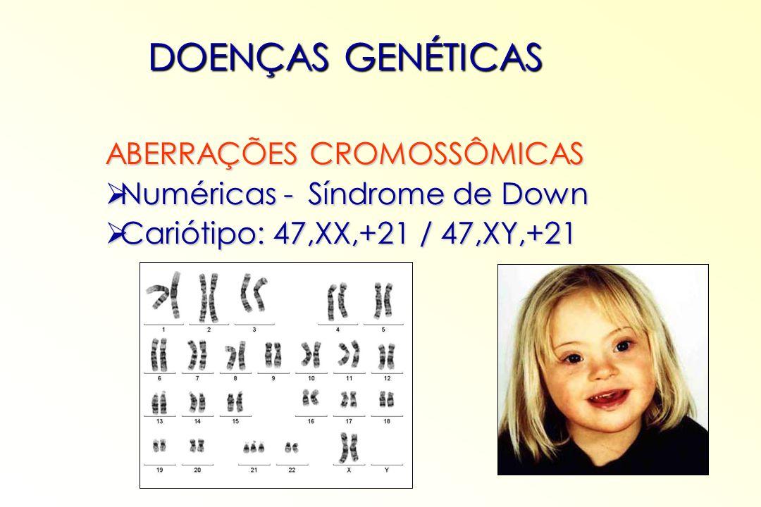 ABERRAÇÕES CROMOSSÔMICAS Numéricas - Síndrome de Turner Numéricas - Síndrome de Turner Cariótipo: 45,X Cariótipo: 45,X DOENÇAS GENÉTICAS