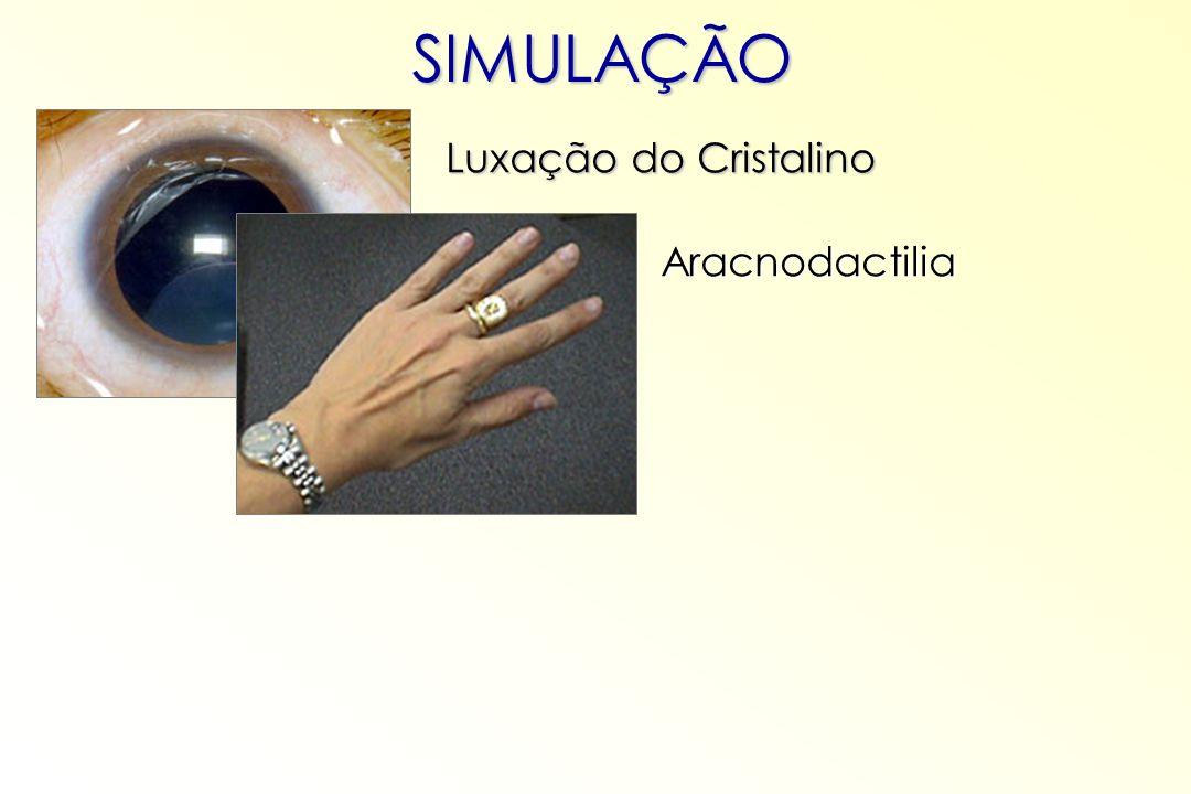 SIMULAÇÃO Aracnodactilia