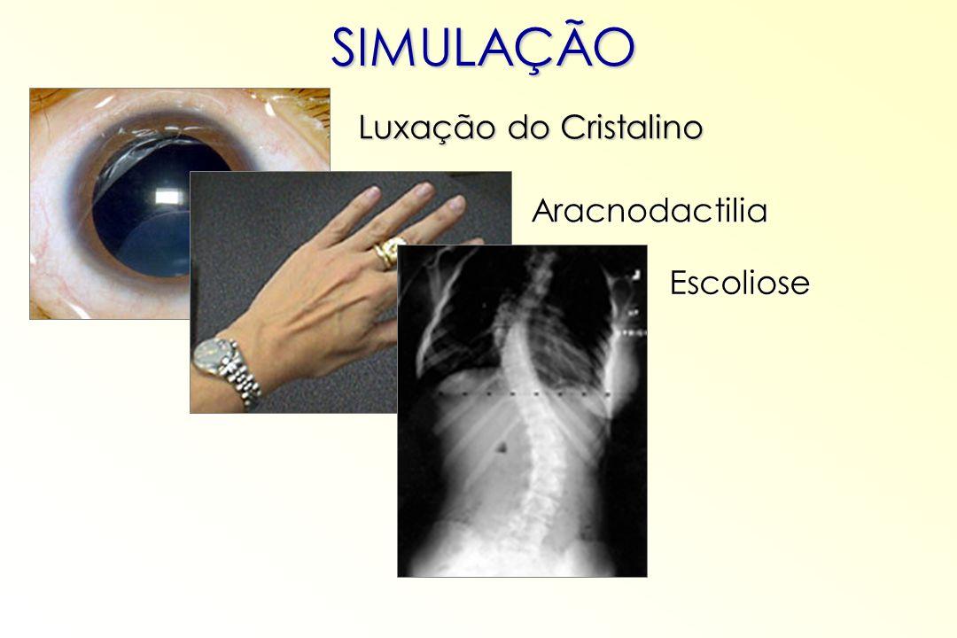 SIMULAÇÃO Aracnodactilia Escoliose