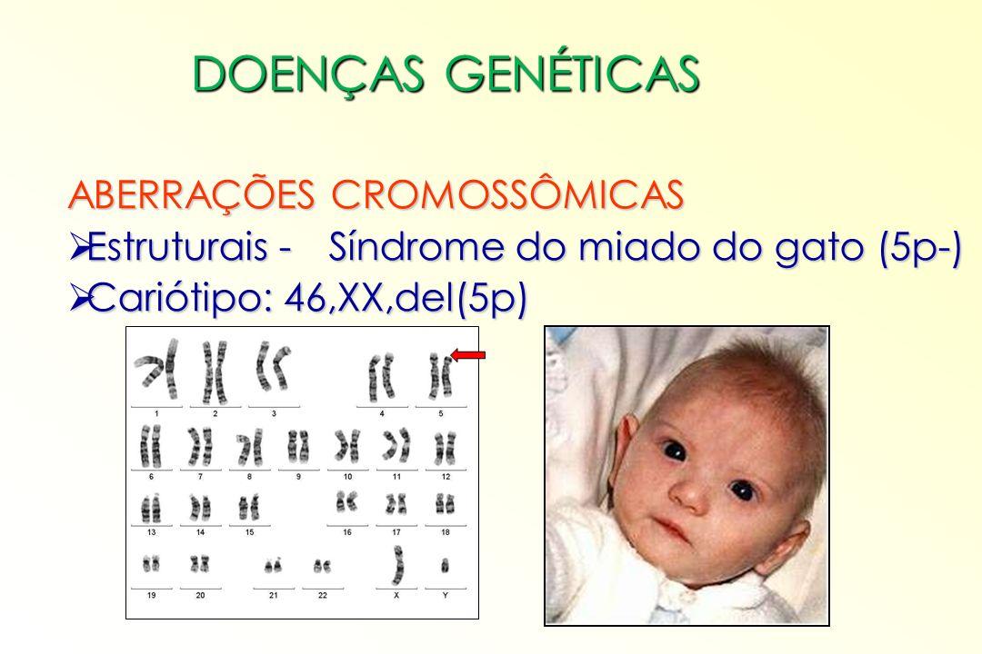 ABERRAÇÕES CROMOSSÔMICAS Estruturais - Síndrome de Wolf-Hirschhorn (4p-) Estruturais - Síndrome de Wolf-Hirschhorn (4p-) Cariótipo: 46,XX,del(4p) Cariótipo: 46,XX,del(4p) DOENÇAS GENÉTICAS