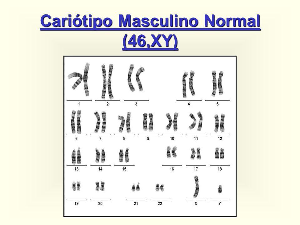 TRISSOMIA 21: ~ 95%: 47,XX (ou XY),+21 ~ 1%: 47,XX,+21 / 46,XX ~ 4%: 46,XX,der(14;21)(q10;q10),+21 e outras translocações Principais cariótipos