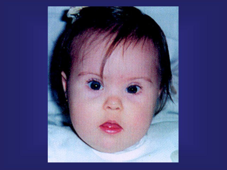 MONOSSOMIA Presença de apenas um representante de um cromossomo (2n - 1) Ex.: monossomia do cromossomo X Síndrome de Turner