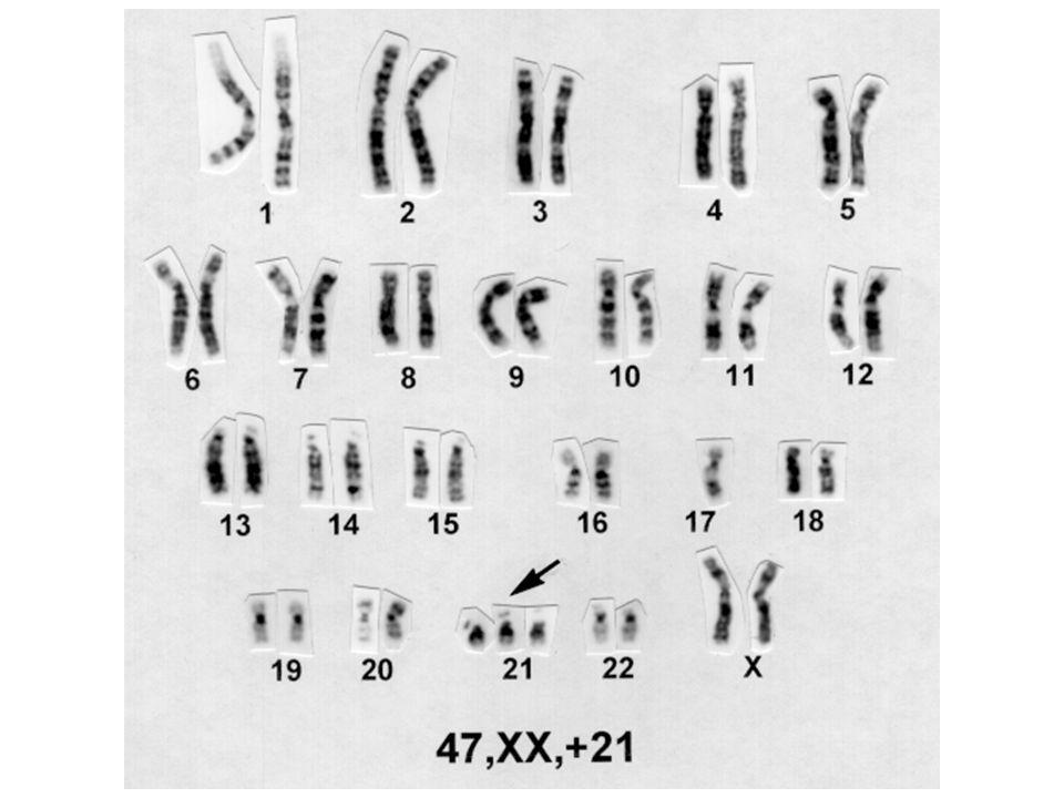 ALTERAÇÃO CROMOSSÔMICA NUMÉRICAS ANEUPLOIDIA: ou de cromossomos de um par TRISSOMIA do cromossomo 21 47,XX,+21 ( 2n + 1) TETRASSOMIA E PENTASSOMIA 48,XXXX 49,XXXXY Ex.: MONOSSOMIA do cromossomo X 45,X (2n - 1)
