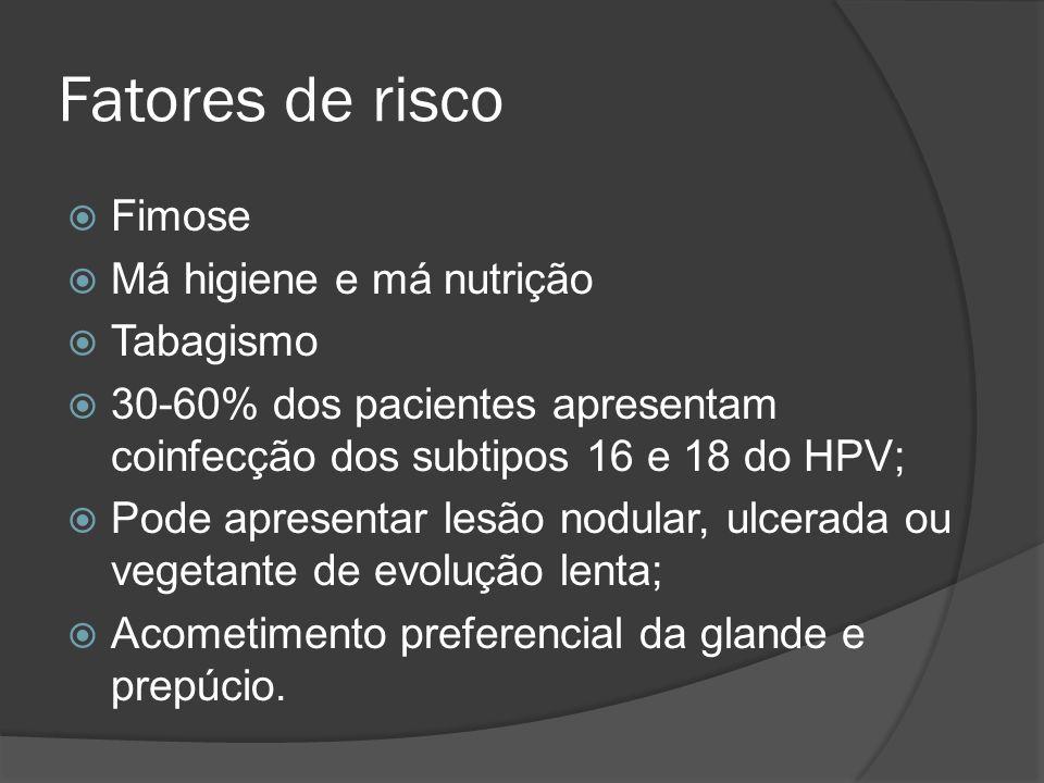 Fatores de risco Fimose Má higiene e má nutrição Tabagismo 30-60% dos pacientes apresentam coinfecção dos subtipos 16 e 18 do HPV; Pode apresentar les