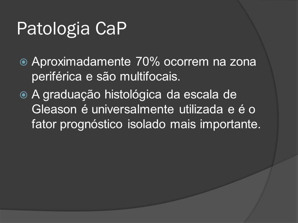 Patologia CaP Aproximadamente 70% ocorrem na zona periférica e são multifocais. A graduação histológica da escala de Gleason é universalmente utilizad