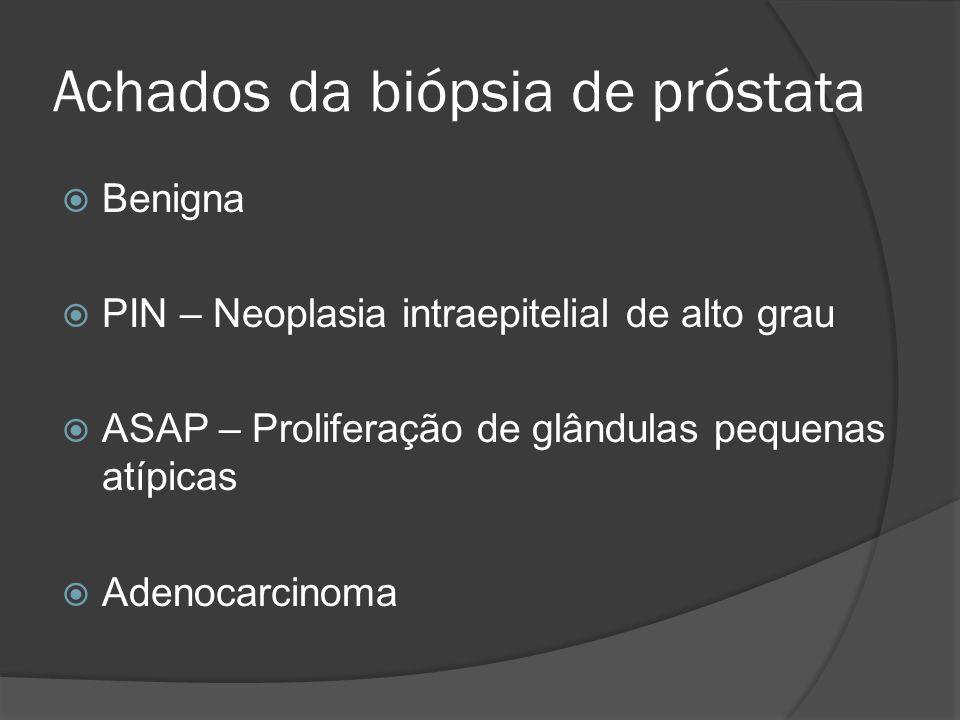 Diagnóstico CaP Toque retal PSA Livre/Total (< 10% - 60% adenocarcinoma).