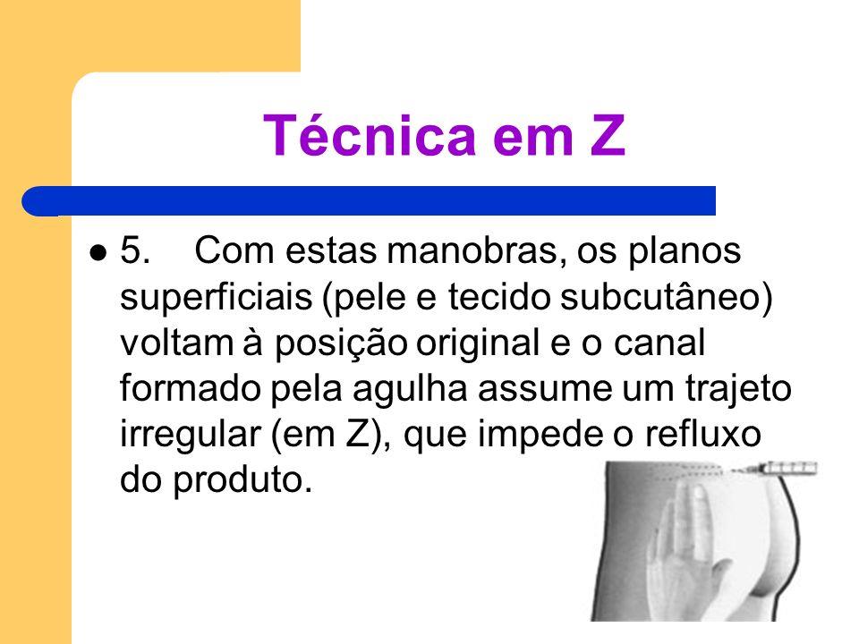 Técnica em Z 5. Com estas manobras, os planos superficiais (pele e tecido subcutâneo) voltam à posição original e o canal formado pela agulha assume u