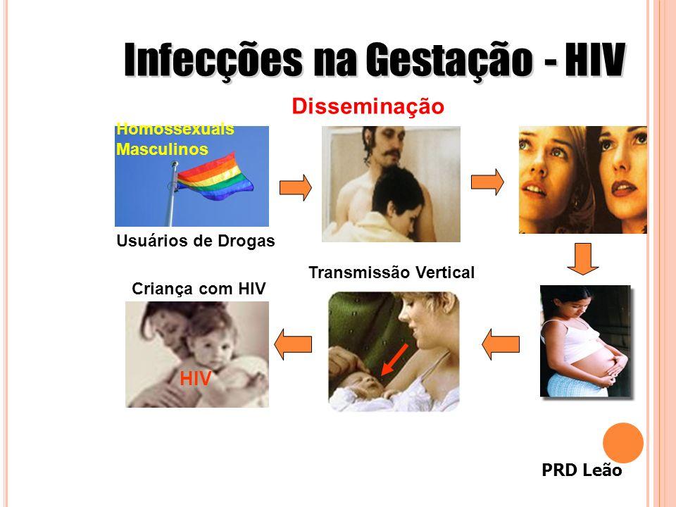 PRD Leão Homossexuais Masculinos Usuários de Drogas Disseminação HIV Transmissão Vertical Criança com HIV