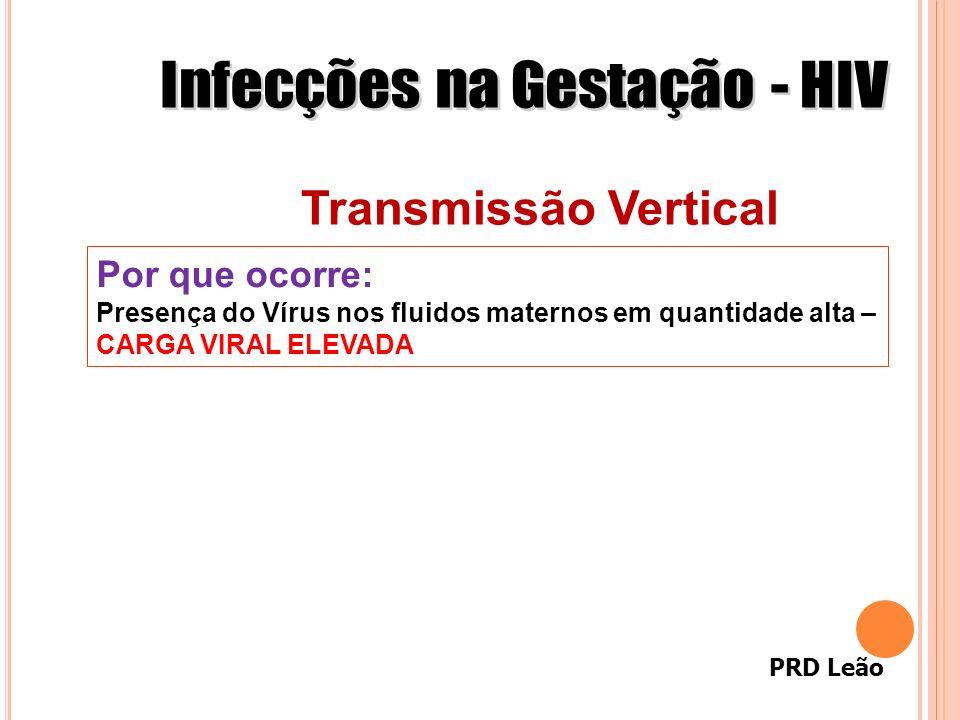 PRD Leão Transmissão Vertical Por que ocorre: Presença do Vírus nos fluidos maternos em quantidade alta – CARGA VIRAL ELEVADA