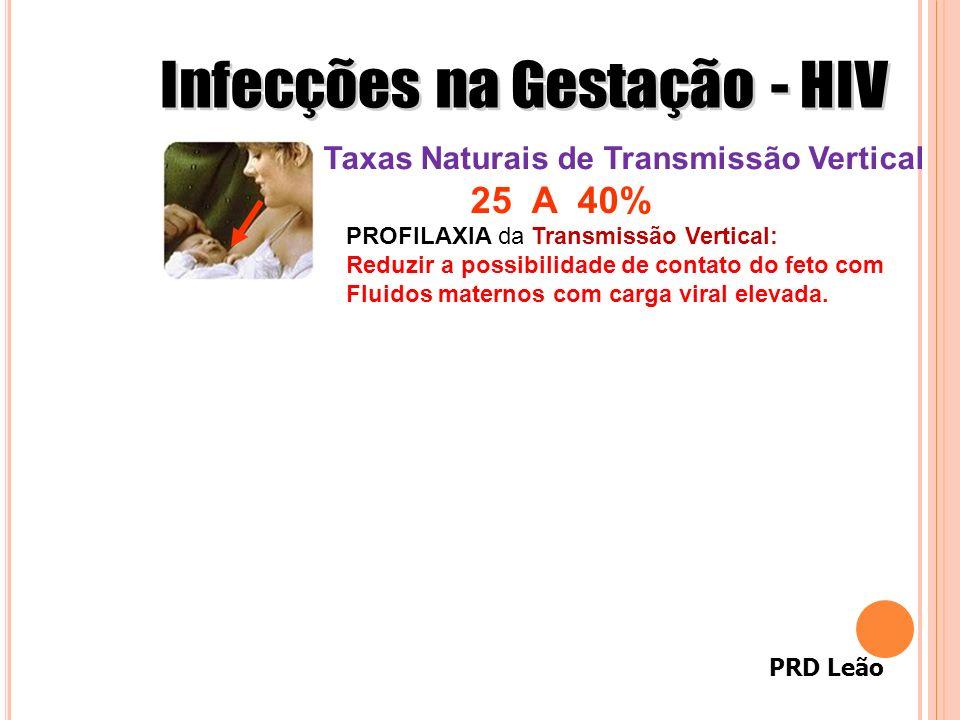 PRD Leão Taxas Naturais de Transmissão Vertical 25 A 40% PROFILAXIA da Transmissão Vertical: Reduzir a possibilidade de contato do feto com Fluidos ma