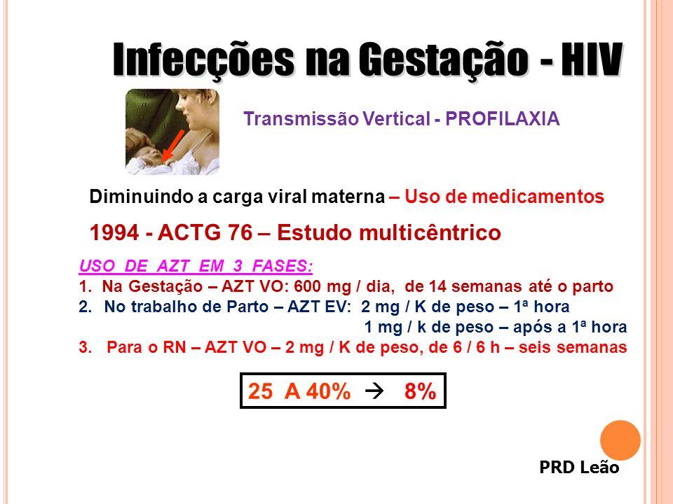 PRD Leão 1994 - ACTG 76 – Estudo multicêntrico USO DE AZT EM 3 FASES: 1. Na Gestação – AZT VO: 600 mg / dia, de 14 semanas até o parto 2.No trabalho d