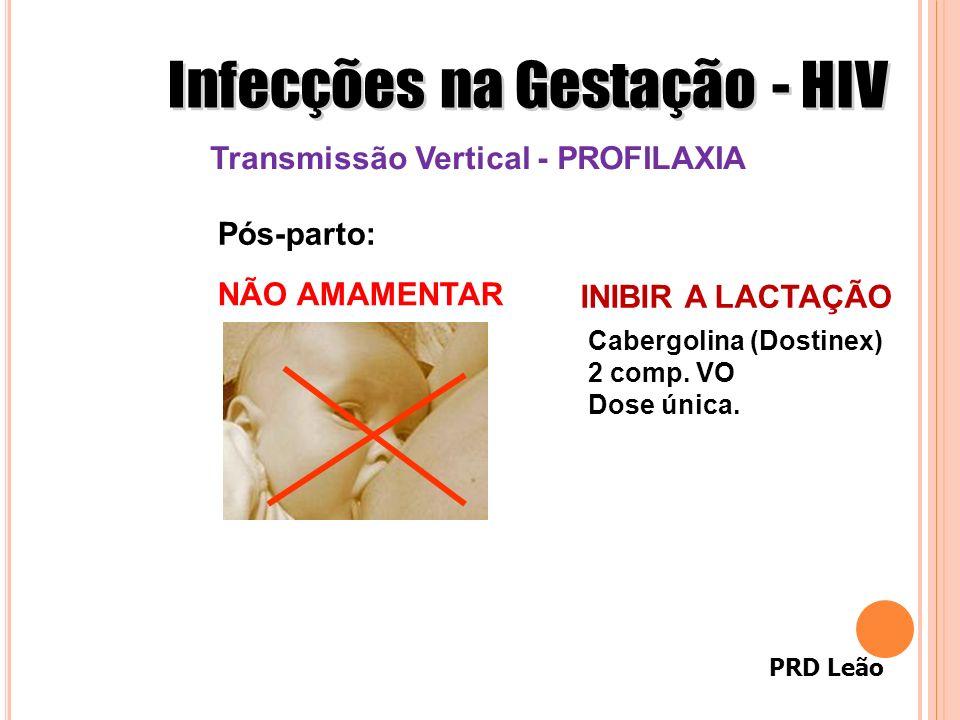 PRD Leão Transmissão Vertical - PROFILAXIA Pós-parto: NÃO AMAMENTAR INIBIR A LACTAÇÃO Cabergolina (Dostinex) 2 comp. VO Dose única.
