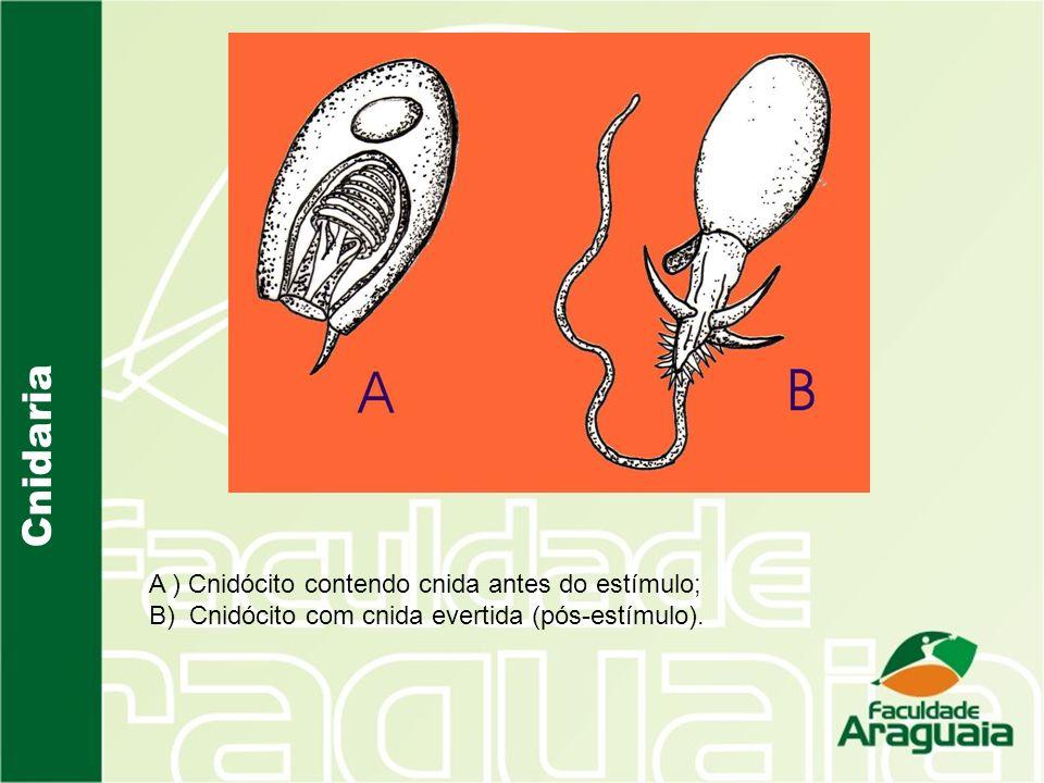 Cnidaria A ) Cnidócito contendo cnida antes do estímulo; B) Cnidócito com cnida evertida (pós-estímulo).