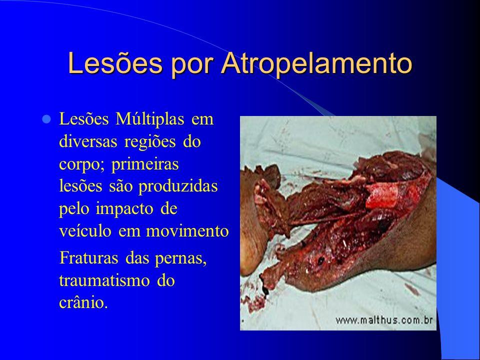 Lesões por Atropelamento Lesões Múltiplas em diversas regiões do corpo; primeiras lesões são produzidas pelo impacto de veículo em movimento Fraturas
