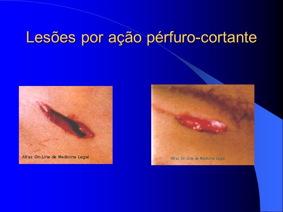 Lesões por ação pérfuro-cortante