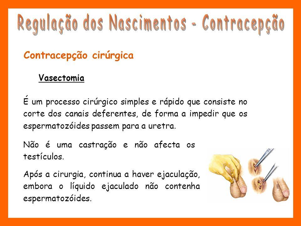 Contracepção cirúrgica Vasectomia É um processo cirúrgico simples e rápido que consiste no corte dos canais deferentes, de forma a impedir que os espe