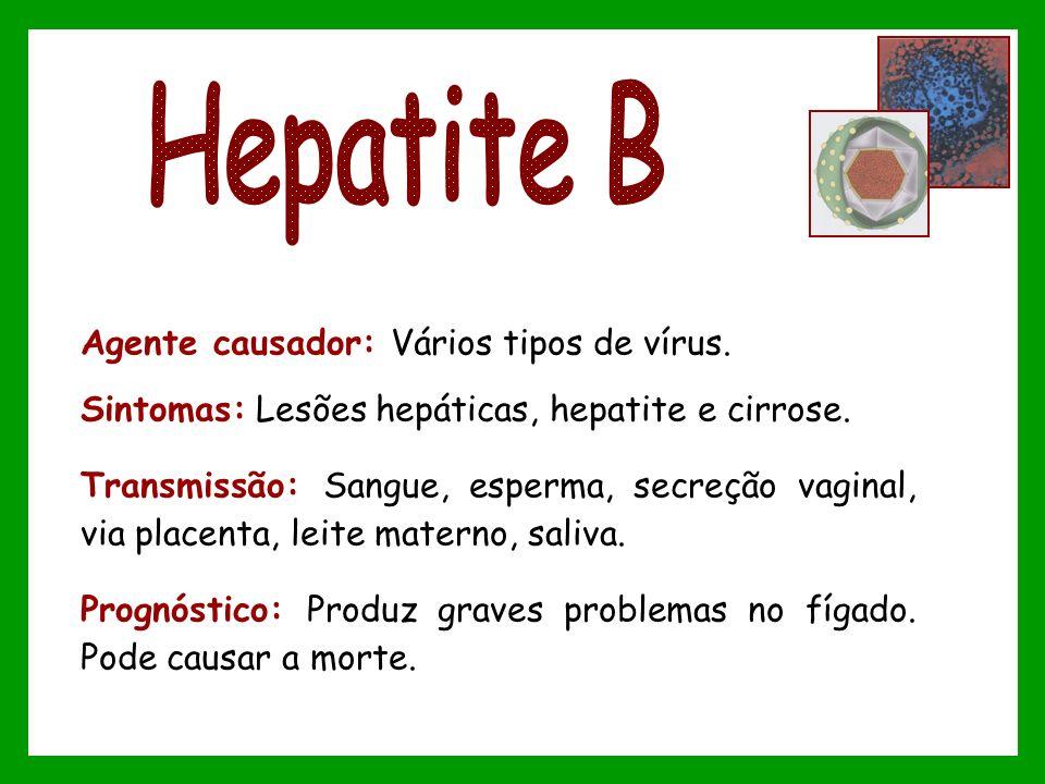 Agente causador: Vários tipos de vírus. Sintomas: Lesões hepáticas, hepatite e cirrose. Transmissão: Sangue, esperma, secreção vaginal, via placenta,