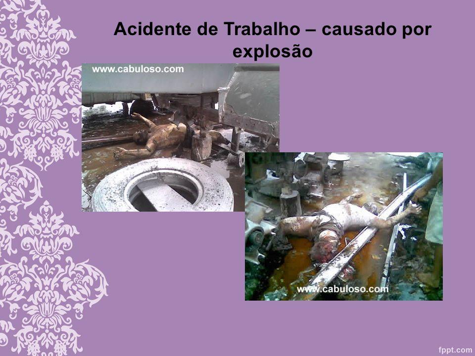 Acidente de Trabalho – causado por explosão