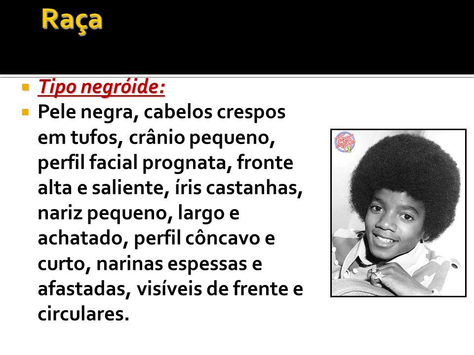 Tipo negróide: Tipo negróide: Pele negra, cabelos crespos em tufos, crânio pequeno, perfil facial prognata, fronte alta e saliente, íris castanhas, na