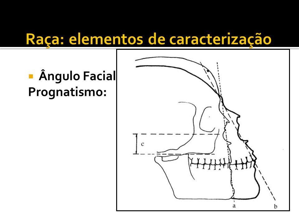 Ângulo Facial: Prognatismo: