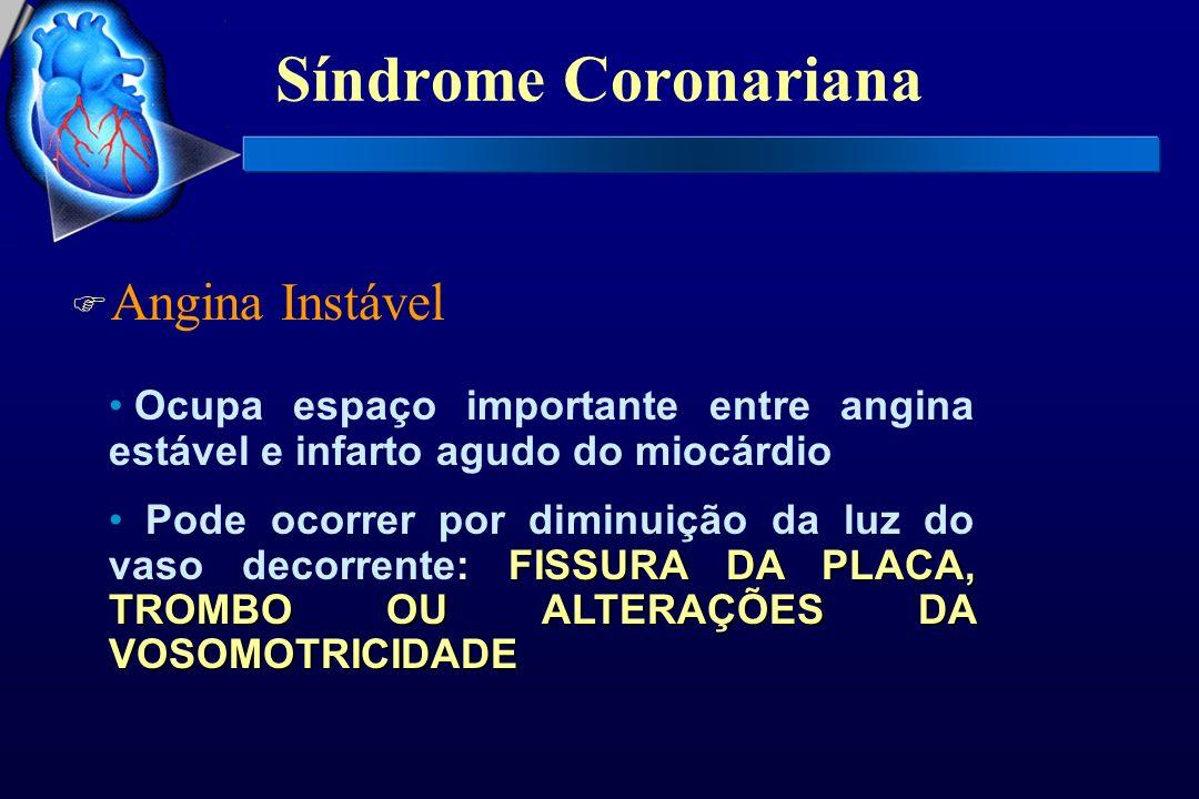 Síndrome Coronariana F Angina Instável Ocupa espaço importante entre angina estável e infarto agudo do miocárdio FISSURA DA PLACA, TROMBO OU ALTERAÇÕE