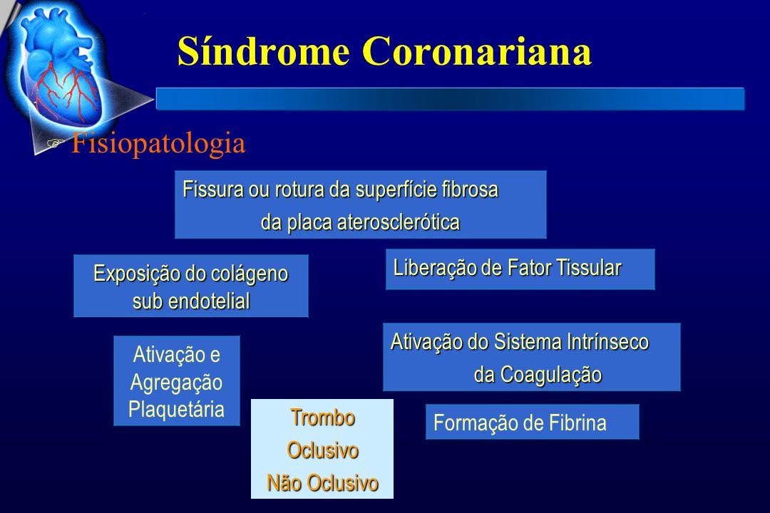 Síndrome Coronariana F Fisiopatologia Fissura ou rotura da superfície fibrosa da placa aterosclerótica da placa aterosclerótica Exposição do colágeno