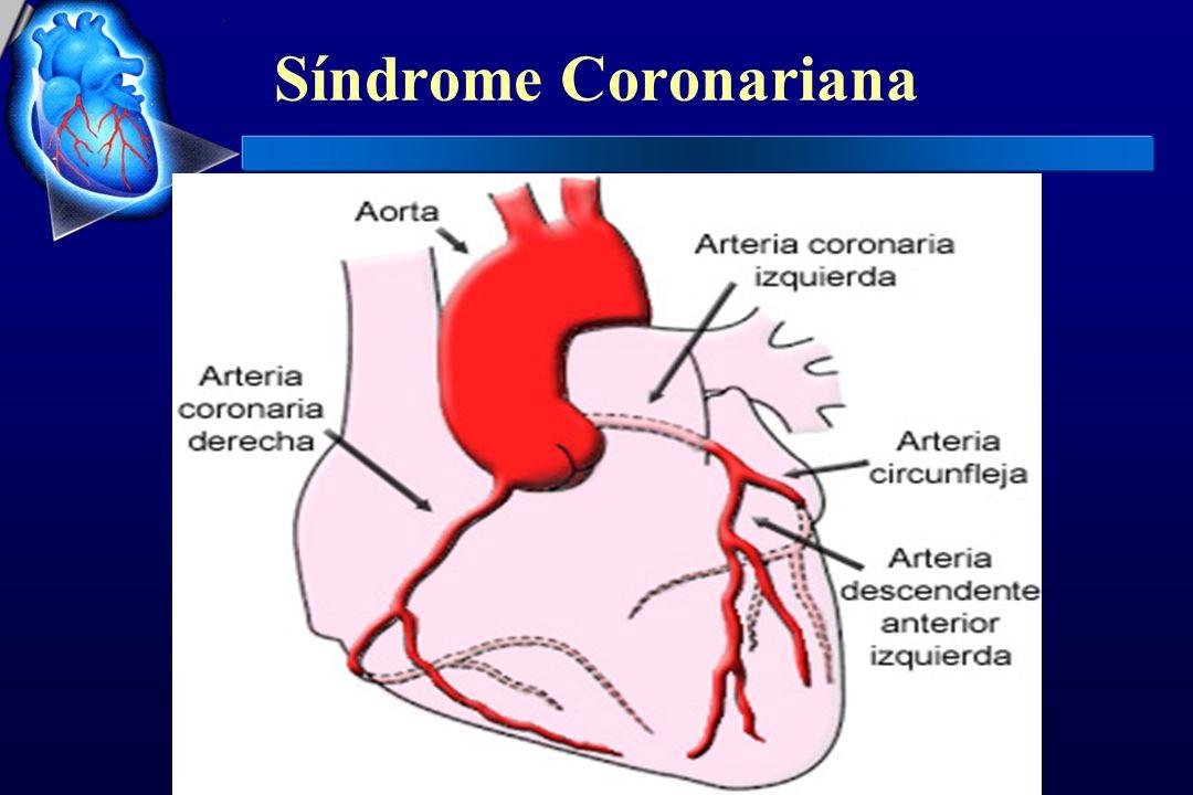 Hemorragia maior 12,7% - 15% em estudos invasivos 0,8% - 4% em estudos não invasivos Hemorragia fatal SK - 0,04%rt-PA -0,1% Freqüência das hemorragias conforme o sítio Hematoma em punção do cateterismo25-45 Sangramento em punçãovenosa1-5 Gastro-intestinal4-10 Genito-urinário1-5 Retroperitoneal<1 Epistaxe<1 % Complicações hemorrágicas em sítio extra-craniano Infarto Agudo do Miocárdio trombólise farmacológica