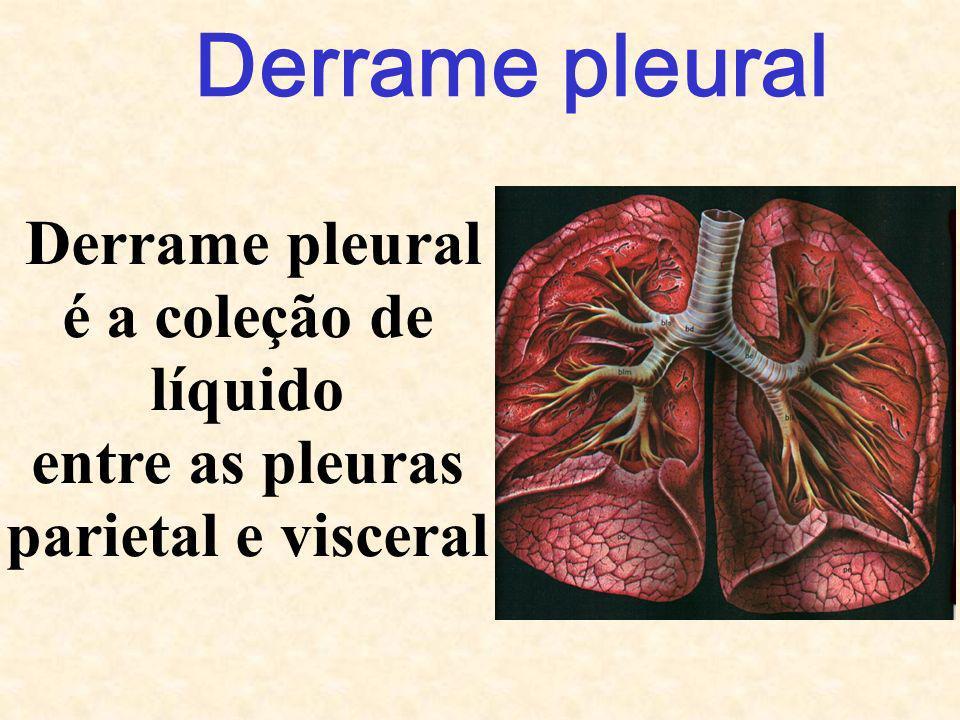 Derrame pleural Derrame pleural é a coleção de líquido entre as pleuras parietal e visceral
