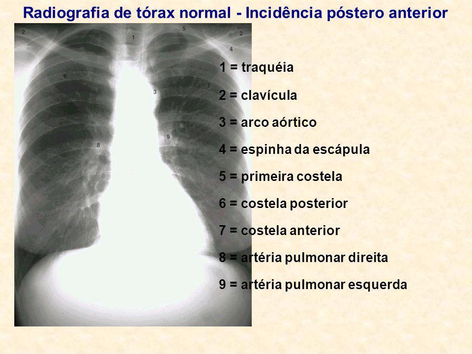 Radiografia de tórax normal - Incidência póstero anterior 1 = traquéia 2 = clavícula 3 = arco aórtico 4 = espinha da escápula 5 = primeira costela 6 =