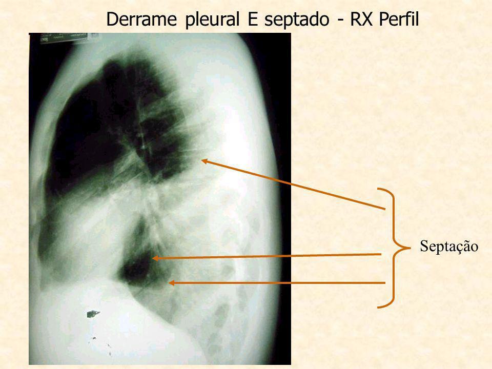 Derrame pleural E septado - RX Perfil Septação