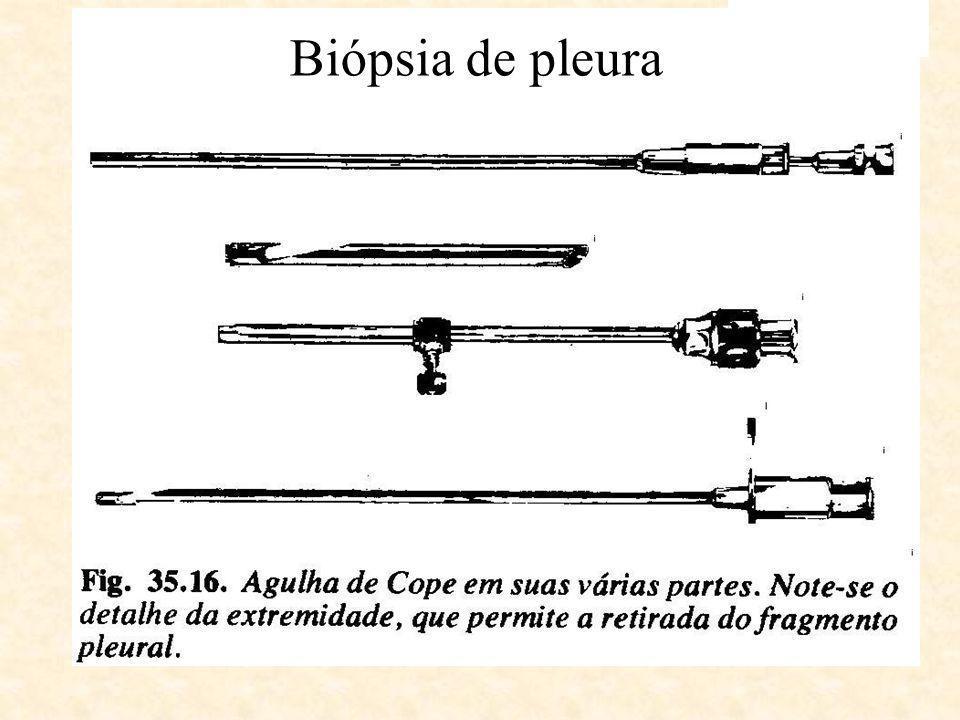 Biópsia de pleura